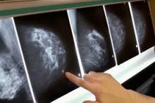 Gli antipsicotici inibitori della dopoamina causano cancro al seno. Nella fotografia, la radiografia di un cancro al seno.