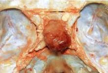 Carcinoma Ipofisario