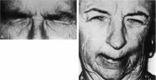 Discinesia facciale