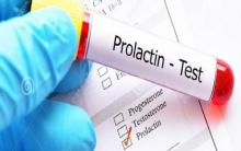 Test dell'iperprolactinemia, immagine pubblicitaria.