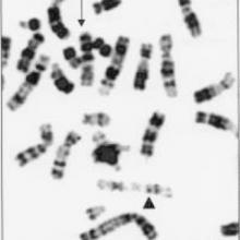 Alcune aberrazioni cromosomiche.