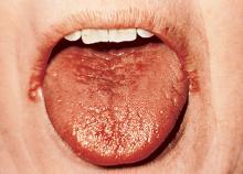 Fotografia di un paziente affetto da fauci secche